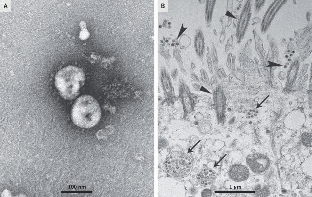 Coronavirus foto